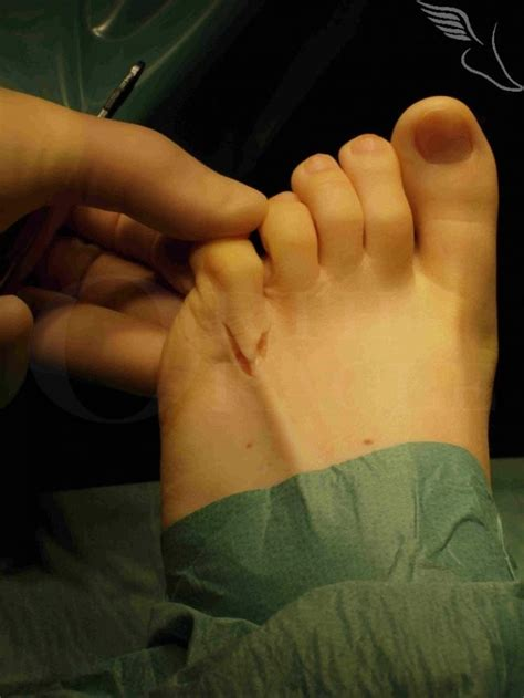 Congenital curly fifth toe correction Surgical Technique
